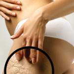 Причины стрии. Растяжки во время (при) беременности